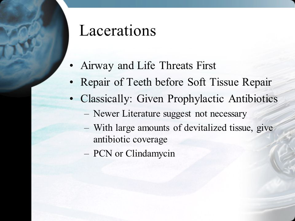 Lacerations Airway and Life Threats First Repair of Teeth before Soft Tissue Repair Classically: Given Prophylactic Antibiotics –Newer Literature sugg