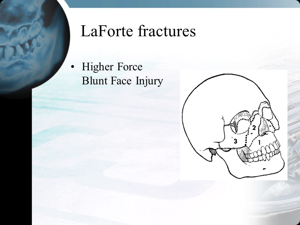 LaForte fractures Higher Force Blunt Face Injury
