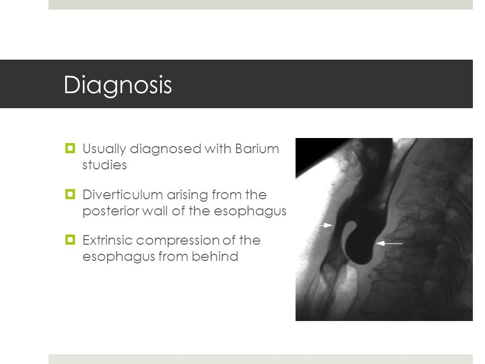 Diagnosis Usually diagnosed with Barium studies Diverticulum arising from the posterior wall of the esophagus Extrinsic compression of the esophagus f
