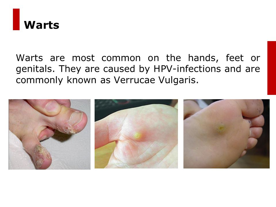 4 Why should warts be treated quickly .1.When small, a wart is more easily removed.