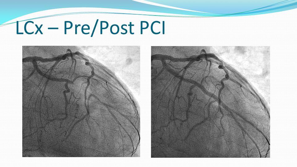 LCx – Pre/Post PCI
