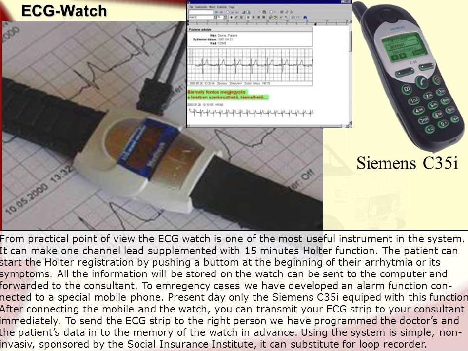 ECG-Watch Siemens C35i From practical point of view the ECG watch is one of the most useful instrument in the system.