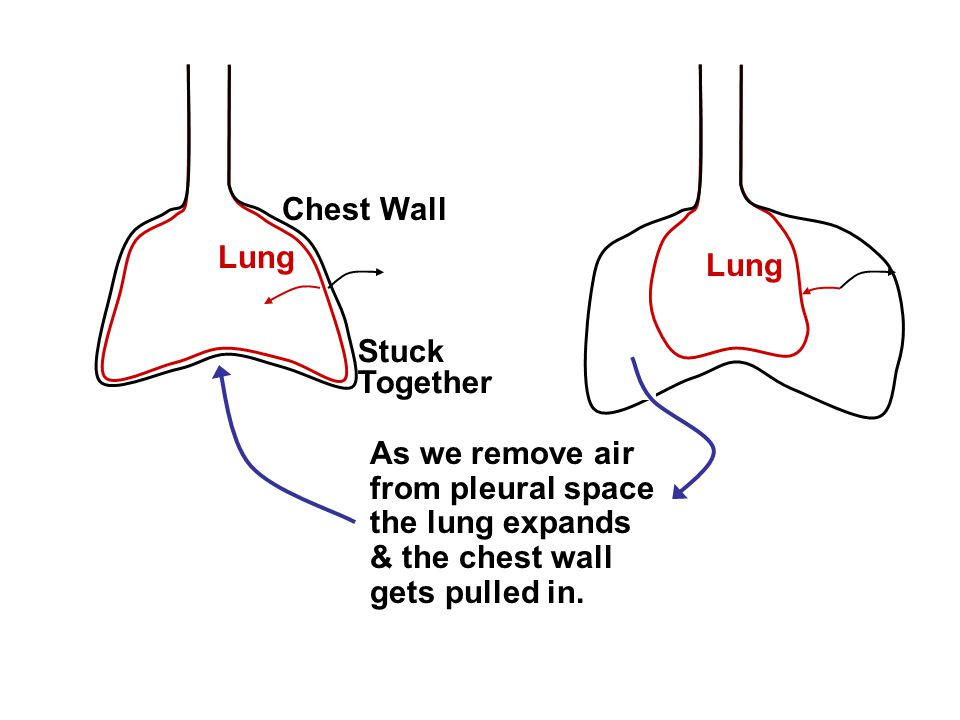 Lung Chest Wall Stuck Together Lung As we remove air from pleural space the lung expands & the chest wall gets pulled in.