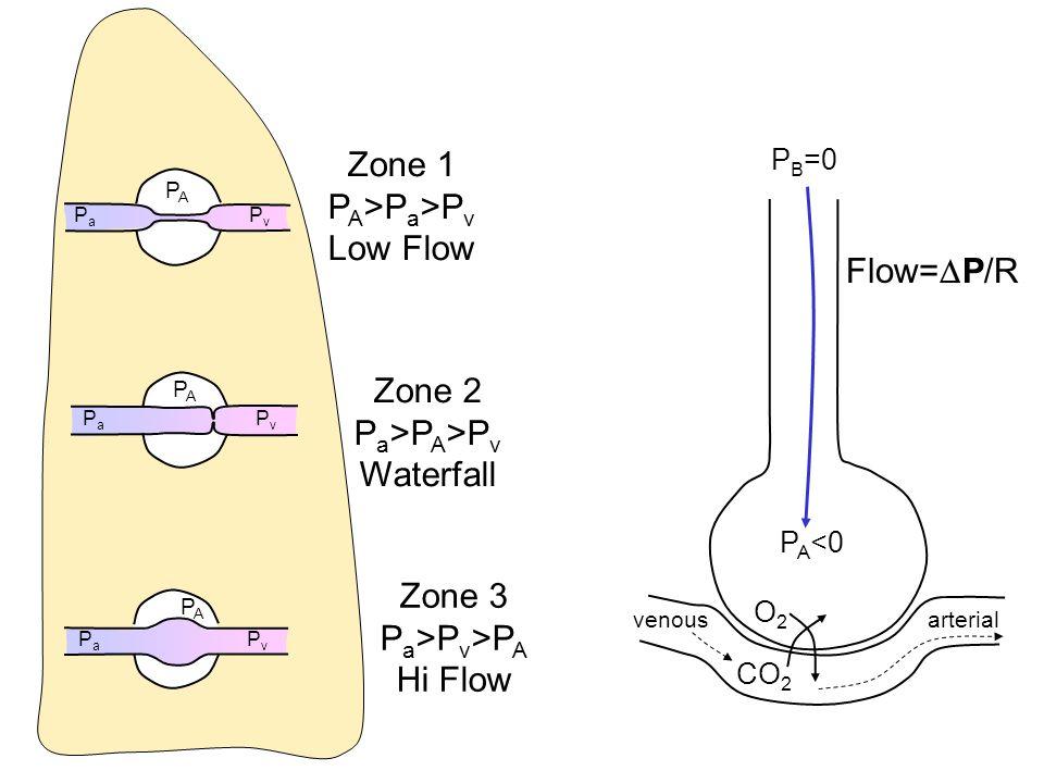 PAPA PaPa PvPv Zone 1 P A >P a >P v Low Flow PAPA PaPa PvPv PAPA PaPa PvPv Zone 2 P a >P A >P v Waterfall Zone 3 P a >P v >P A Hi Flow O2O2 CO 2 venou