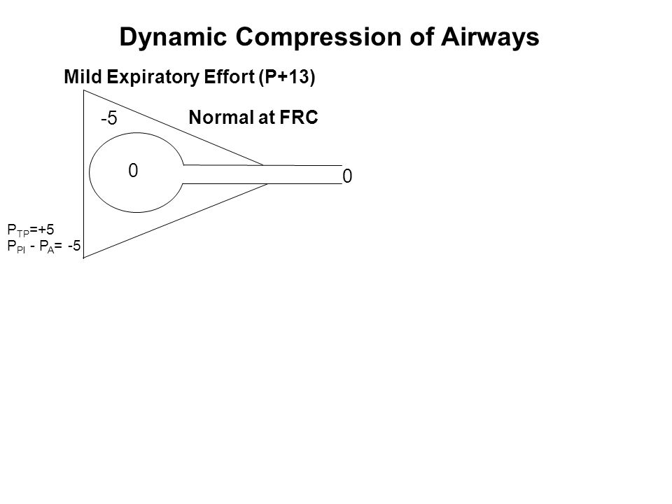 Mild Expiratory Effort (P+13) 0 Normal at FRC -5 0 Dynamic Compression of Airways P TP =+5 P Pl - P A = -5