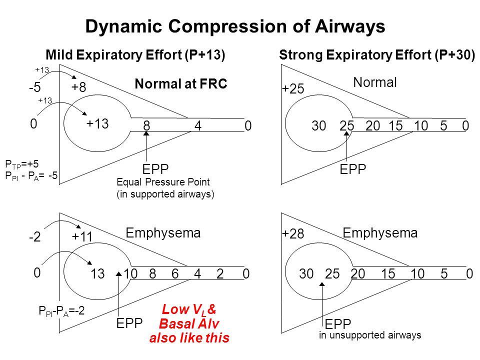 Strong Expiratory Effort (P+30) +25 3025 20 15 1050 EPP Normal +28 30 25 20 15 105 0 EPP Emphysema in unsupported airways 13 10 8 6420 EPP Emphysema +