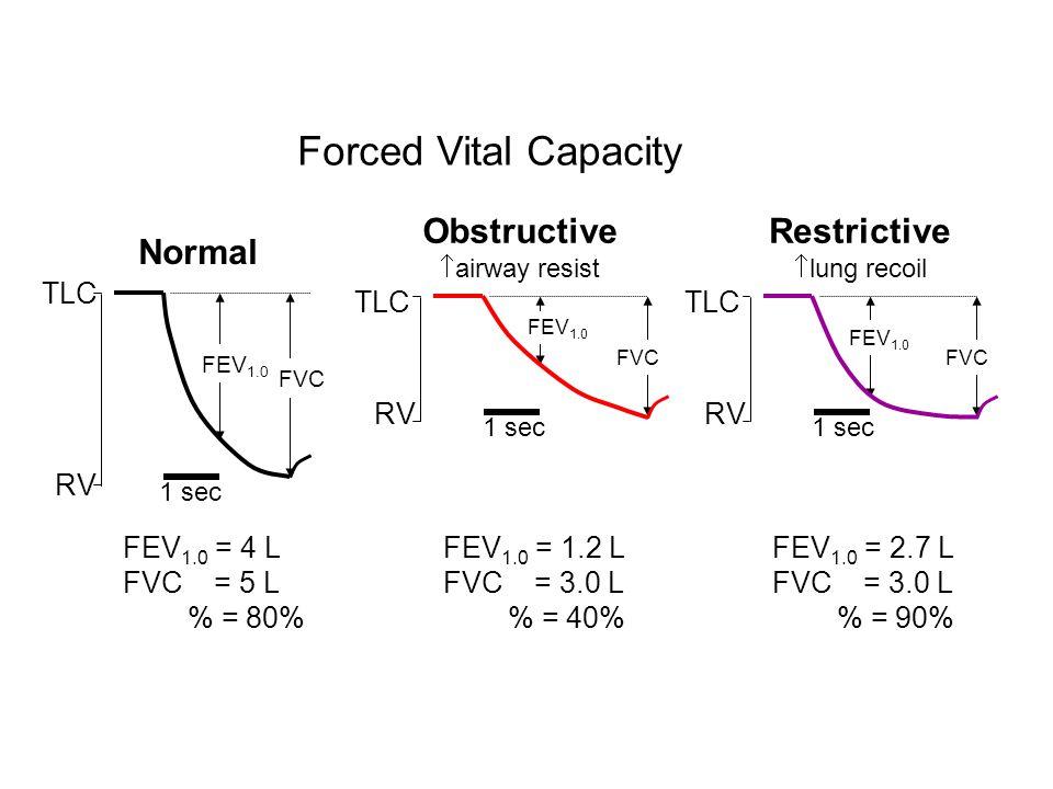 Forced Vital Capacity TLC FEV 1.0 FVC 1 sec FEV 1.0 = 4 L FVC = 5 L % = 80% RV Normal TLC FEV 1.0 FVC 1 sec FEV 1.0 = 1.2 L FVC = 3.0 L % = 40% RV Obs
