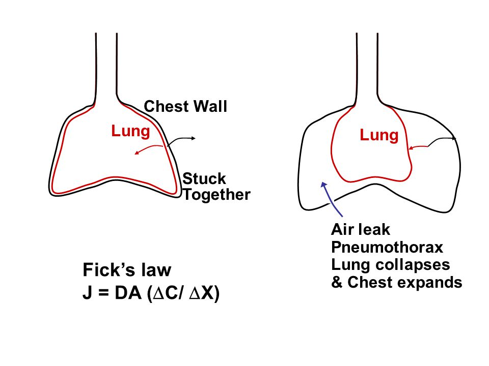 Ficks law J = DA ( C/ X) Lung Chest Wall Stuck Together Lung Air leak Pneumothorax Lung collapses & Chest expands