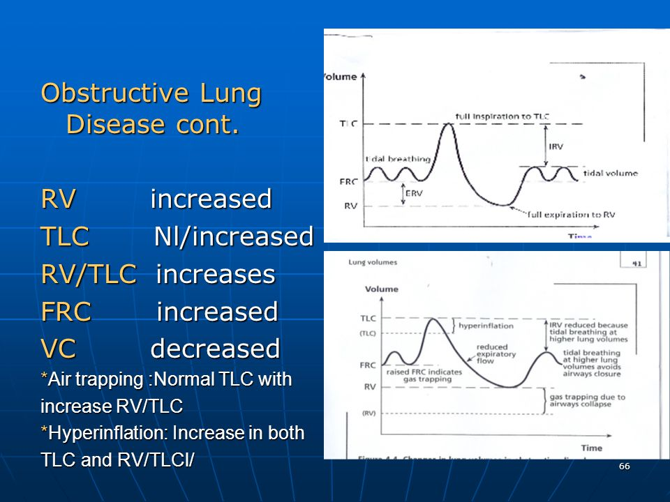 66 Obstructive Lung Disease cont. RV increased TLC Nl/increased RV/TLC increases FRC increased VC decreased *Air trapping :Normal TLC with increase RV