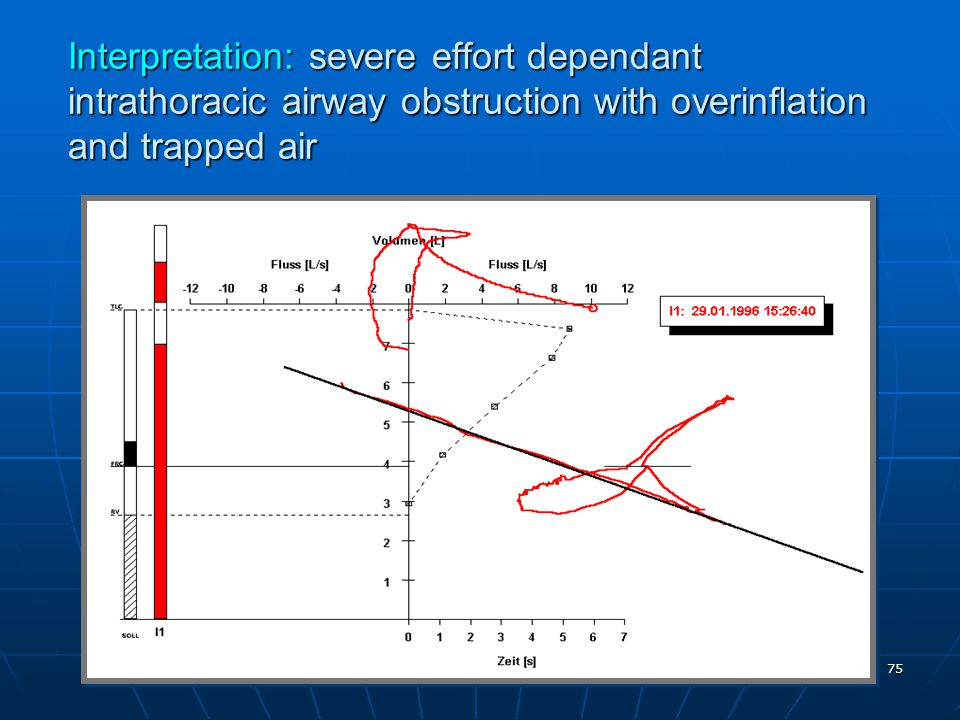 Interpretation: severe effort dependant intrathoracic airway obstruction with overinflation and trapped air 75