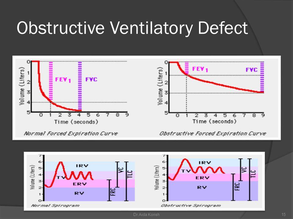Obstructive Ventilatory Defect 15Dr.Aida Korish