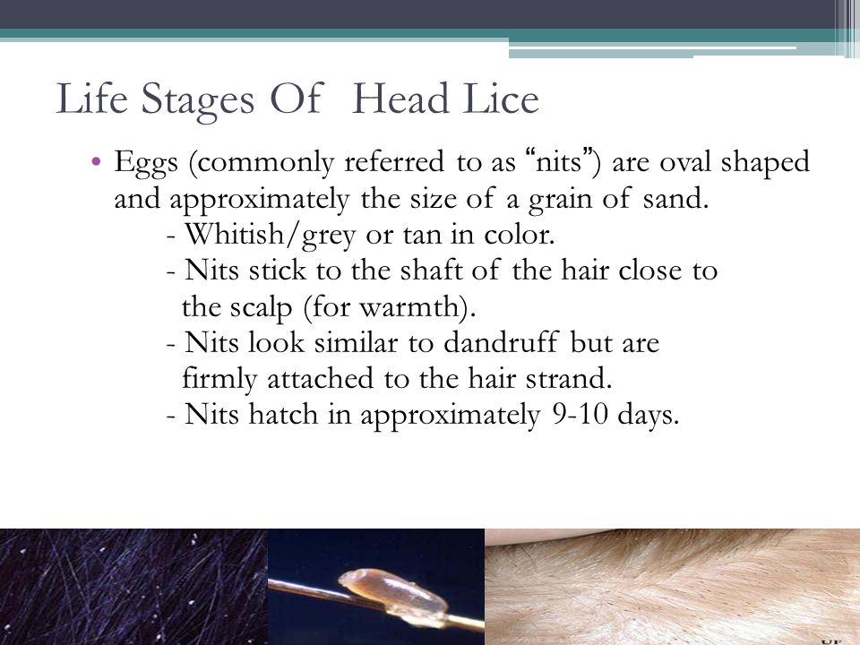 Life Stages Of Head Lice Eggs (commonly referred to as nits) are oval shaped and approximately the size of a grain of sand. - Whitish/grey or tan in c