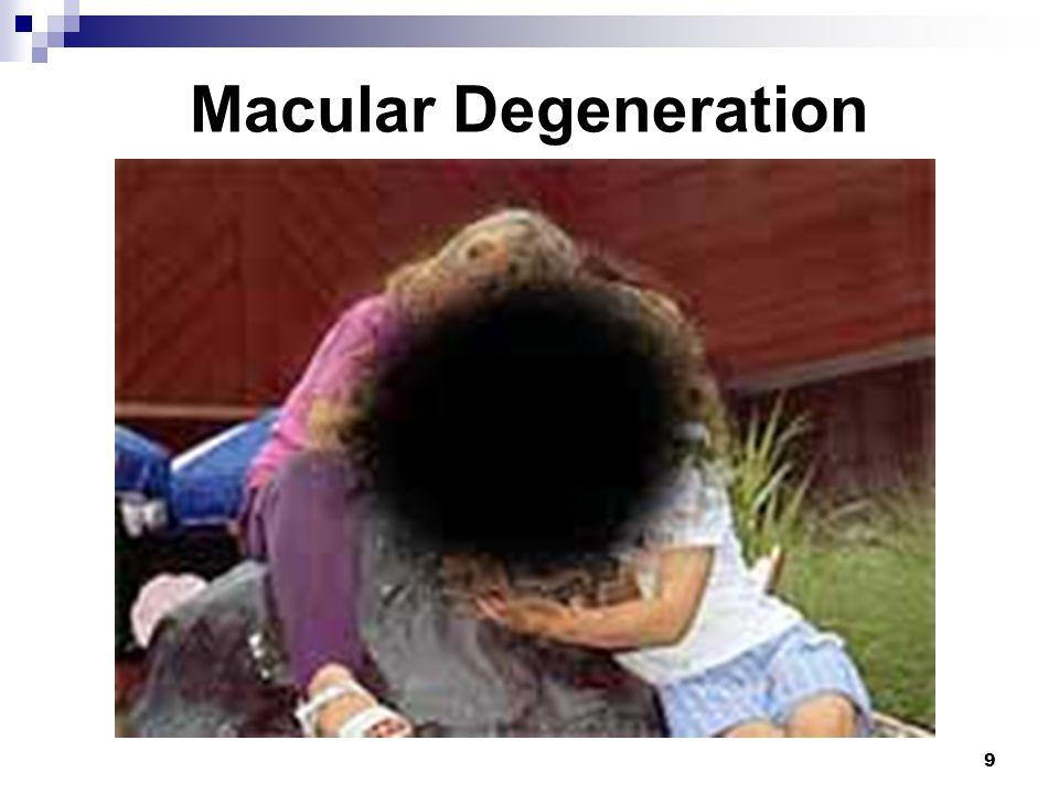 9 Macular Degeneration