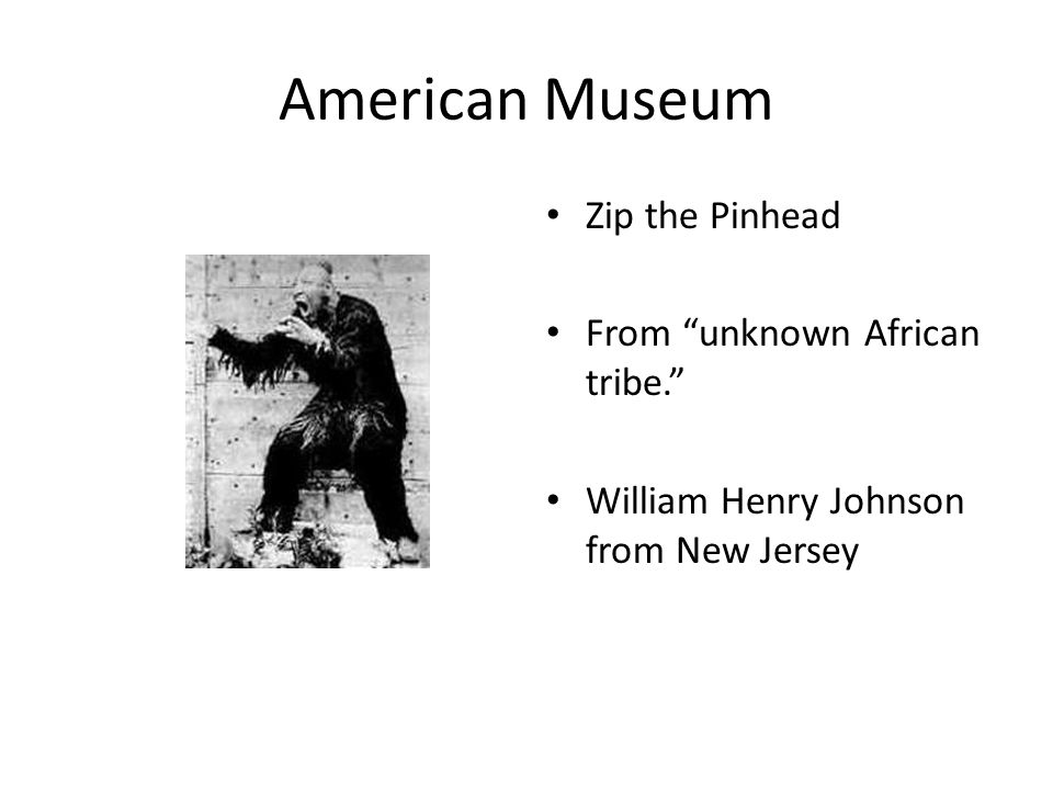 American Museum Zip the Pinhead From unknown African tribe. William Henry Johnson from New Jersey