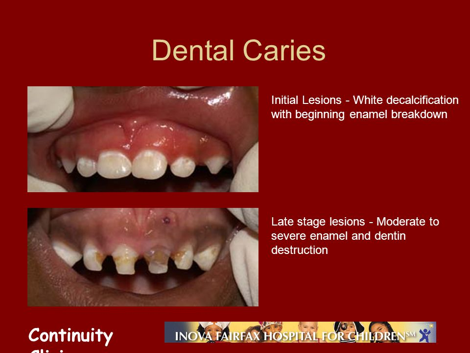 Continuity Clinic Dental Caries Initial Lesions - White decalcification with beginning enamel breakdown Late stage lesions - Moderate to severe enamel and dentin destruction