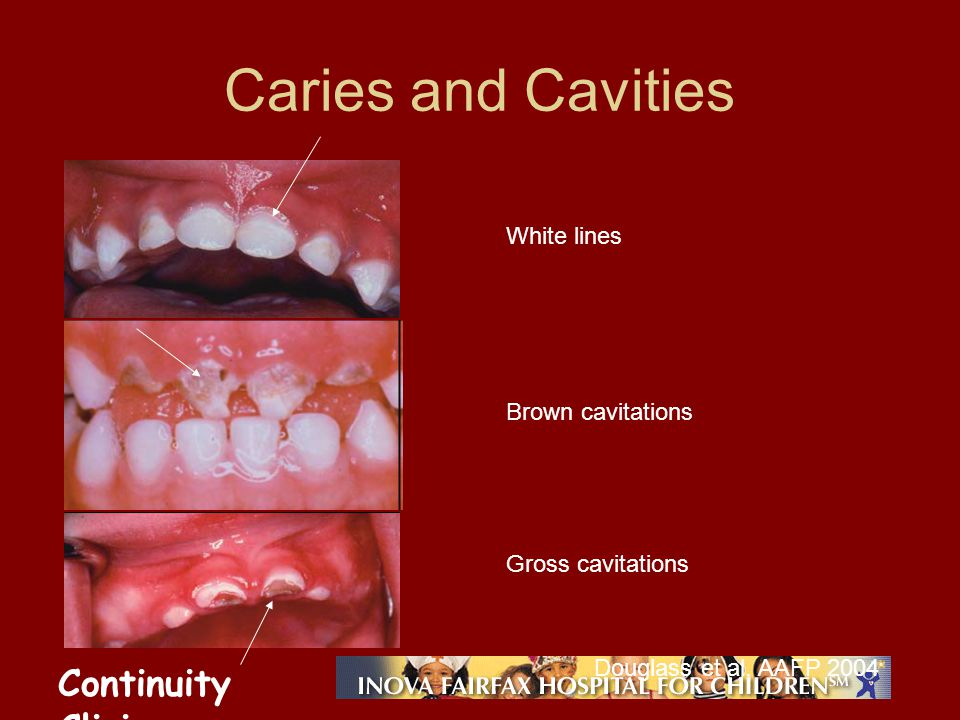 Continuity Clinic Caries and Cavities Brown cavitations White lines Gross cavitations Douglass et al, AAFP 2004