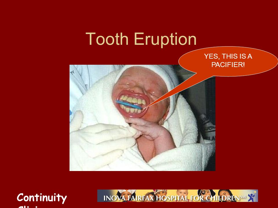 Continuity Clinic Tooth Eruption YES, THIS IS A PACIFIER!