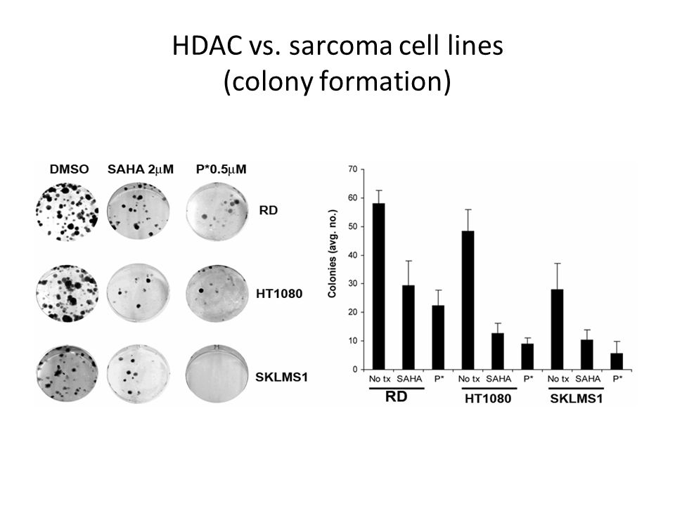 HDAC vs. sarcoma cell lines (colony formation)