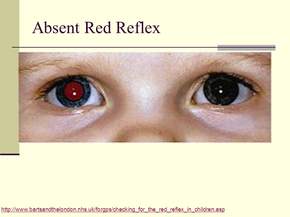 Absent Red Reflex http://www.bartsandthelondon.nhs.uk/forgps/checking_for_the_red_reflex_in_children.asp