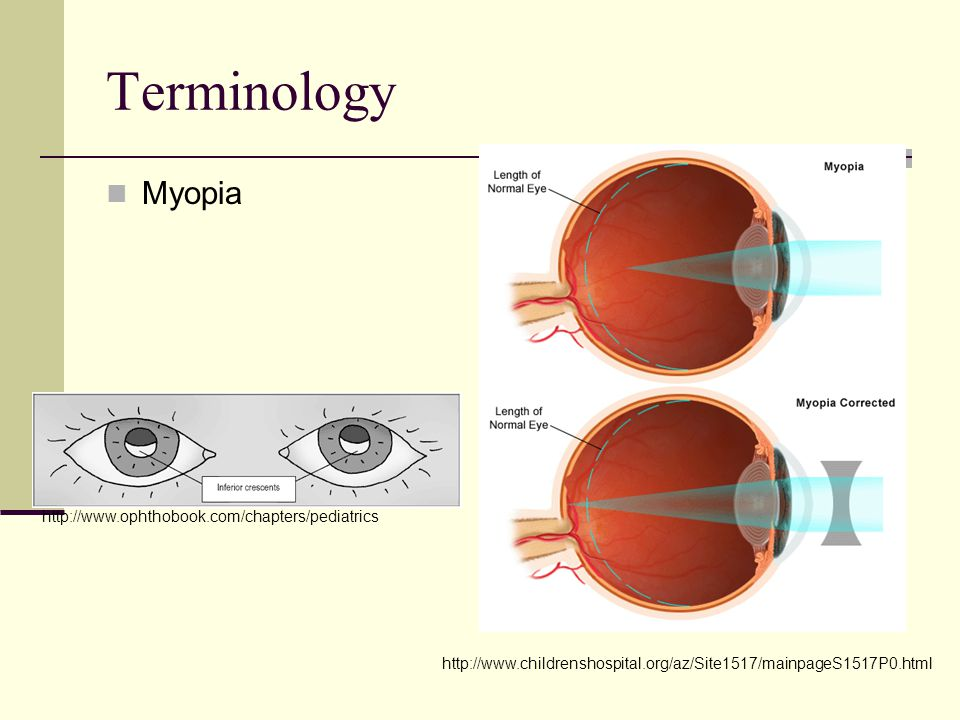 Terminology Myopia http://www.childrenshospital.org/az/Site1517/mainpageS1517P0.html http://www.ophthobook.com/chapters/pediatrics