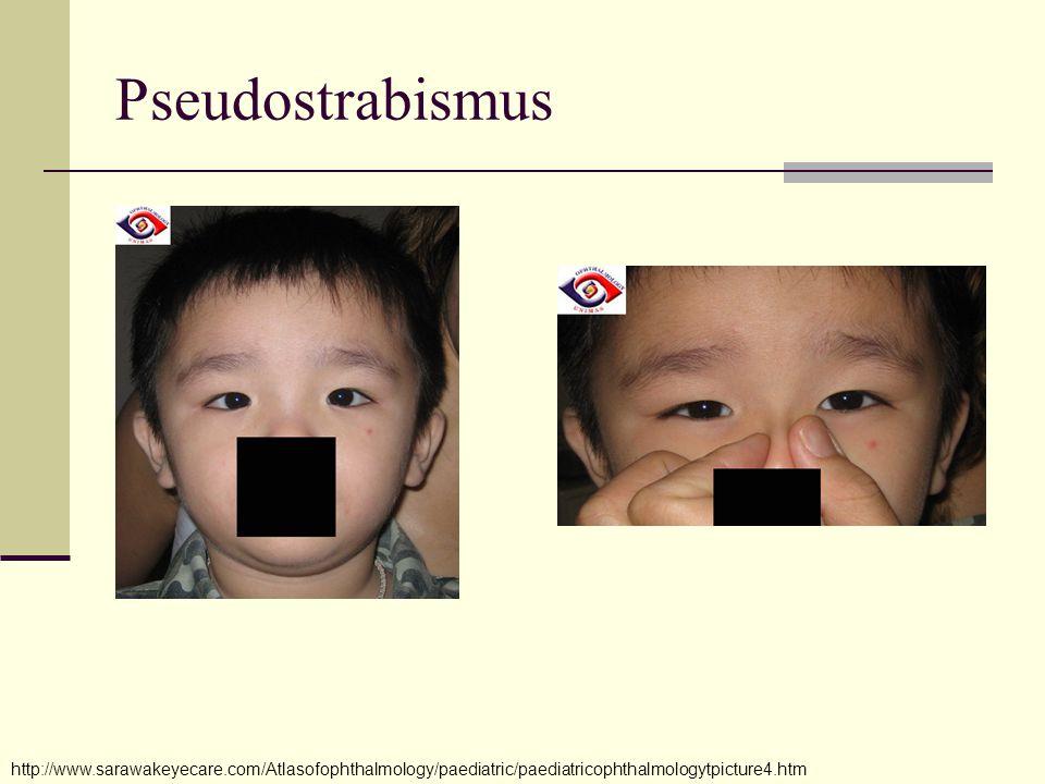 Pseudostrabismus http://www.sarawakeyecare.com/Atlasofophthalmology/paediatric/paediatricophthalmologytpicture4.htm