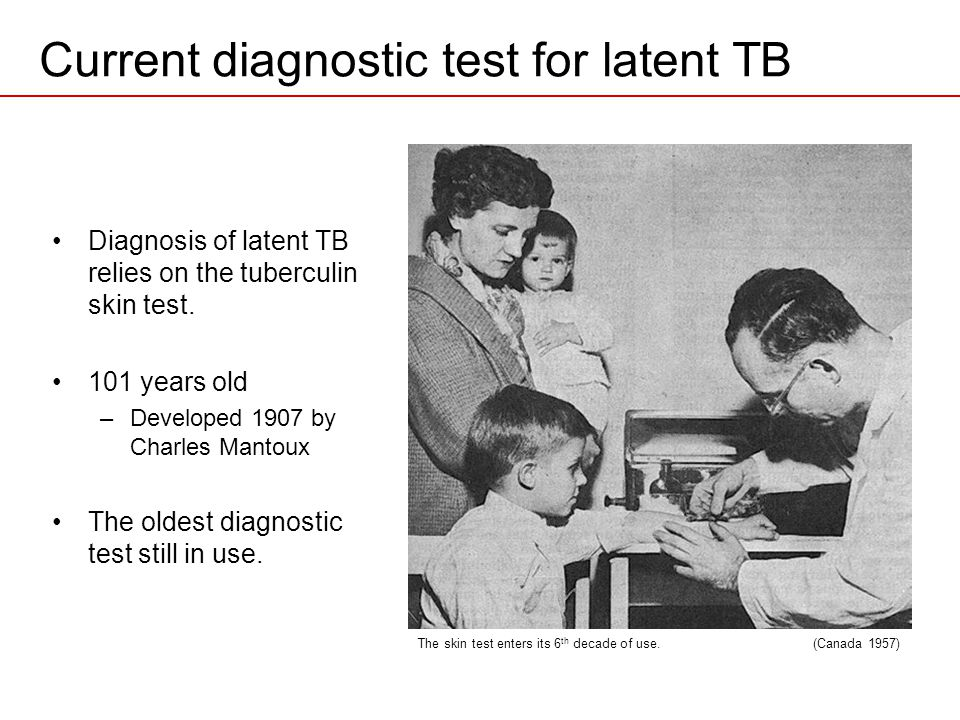 Current diagnostic test for latent TB Diagnosis of latent TB relies on the tuberculin skin test. 101 years old –Developed 1907 by Charles Mantoux The