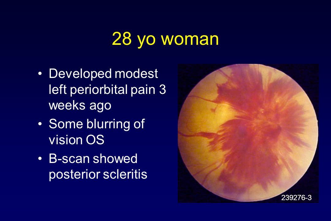 28 yo woman Developed modest left periorbital pain 3 weeks ago Some blurring of vision OS B-scan showed posterior scleritis 239276-3