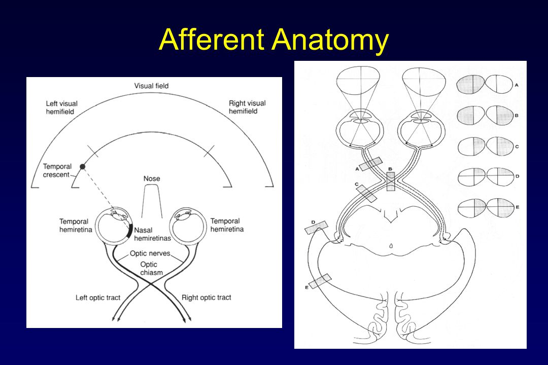 Afferent Visual System Anatomy Examination Diagnoses Tests Visual acuity Color vision Visual field Pupil examination Fundoscopy