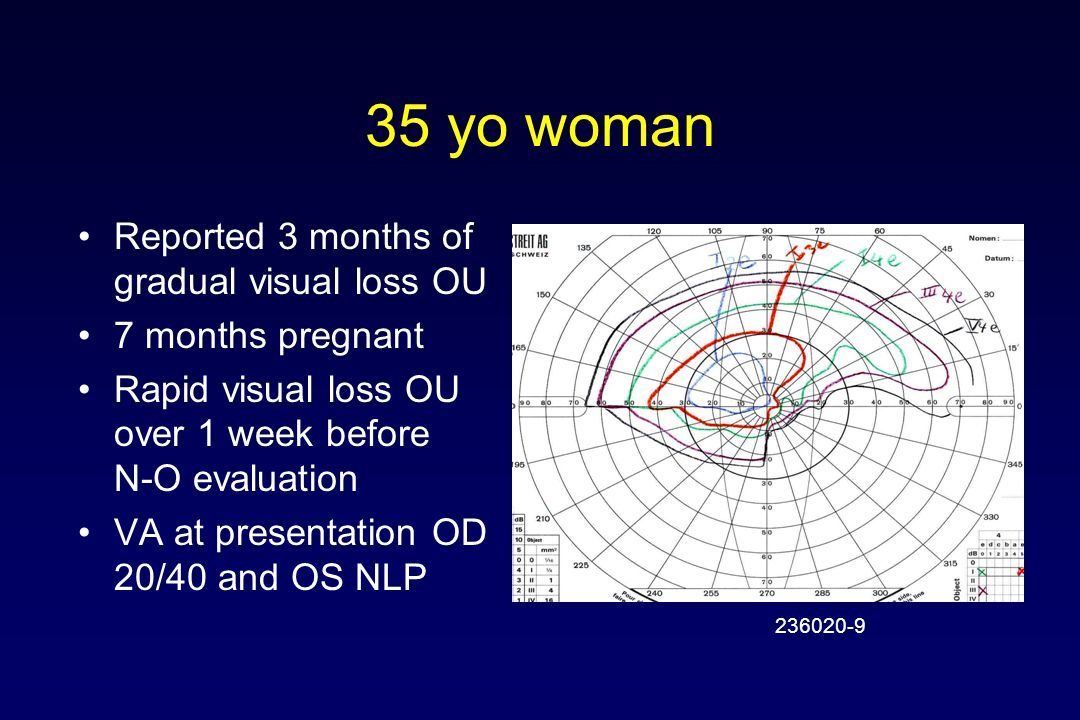 35 yo woman Reported 3 months of gradual visual loss OU 7 months pregnant Rapid visual loss OU over 1 week before N-O evaluation VA at presentation OD