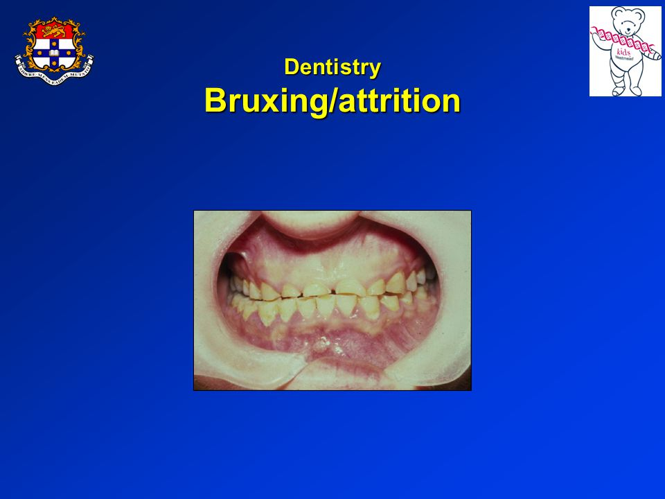 Dentistry Bruxing/attrition