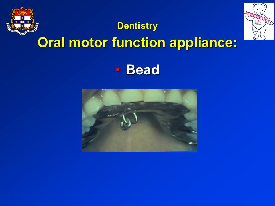 Dentistry Oral motor function appliance: BeadBead