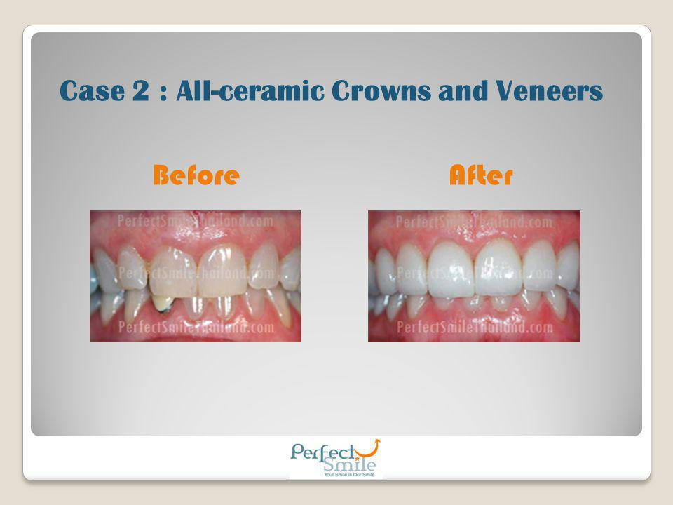Before After Case 2 : All-ceramic Crowns and Veneers