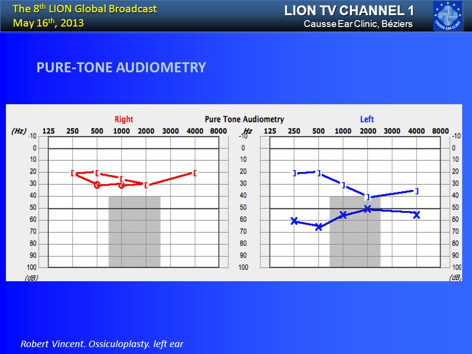 LION TV CHANNEL 1 PURE-TONE AUDIOMETRY Causse Ear Clinic, Béziers The 8 th LION Global Broadcast May 16 th, 2013 Robert Vincent. Ossiculoplasty. left