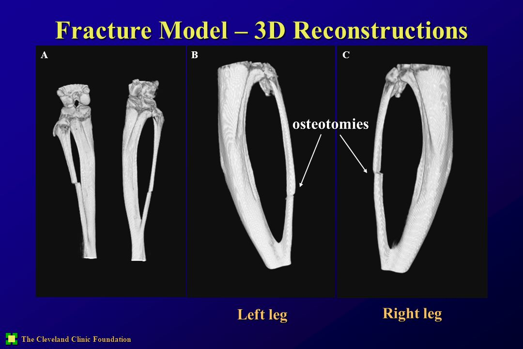 The Cleveland Clinic Foundation Fracture Model – 3D Reconstructions Left leg Right leg ABCosteotomies