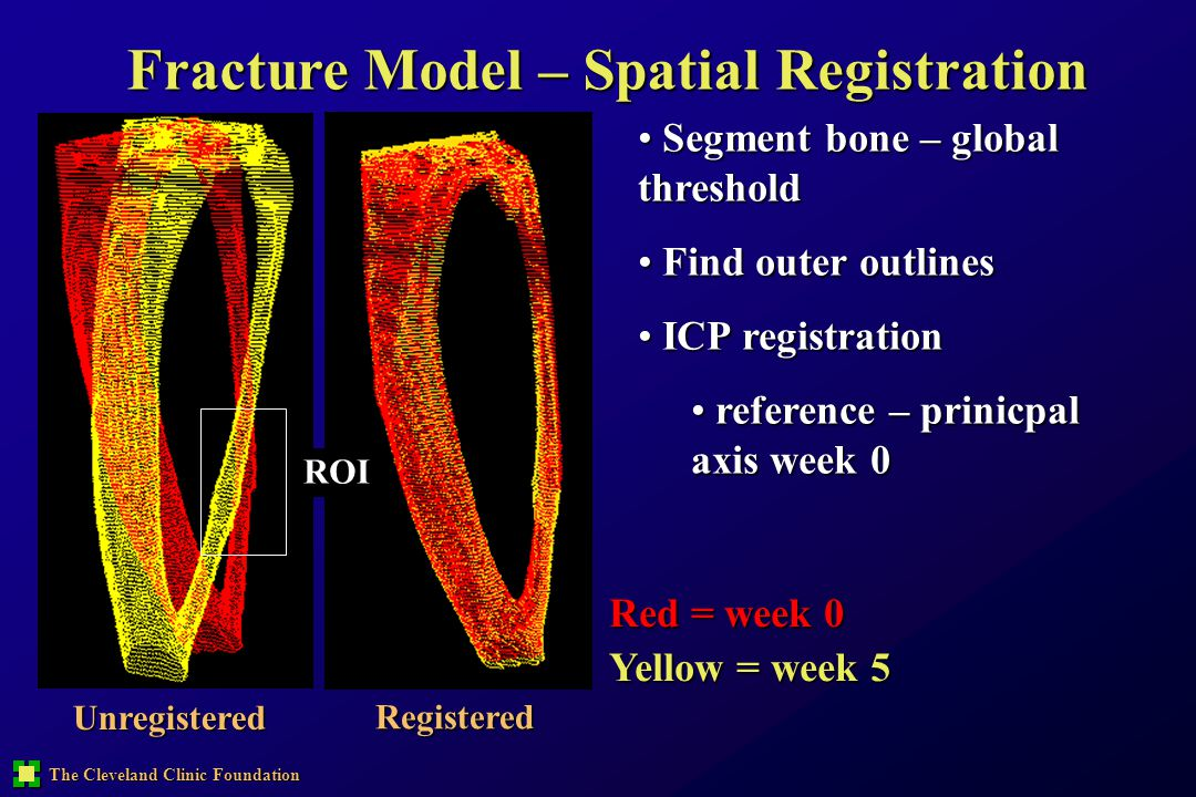 The Cleveland Clinic Foundation Fracture Model – Spatial Registration Unregistered Registered Red = week 0 Yellow = week 5 ROI Segment bone – global t