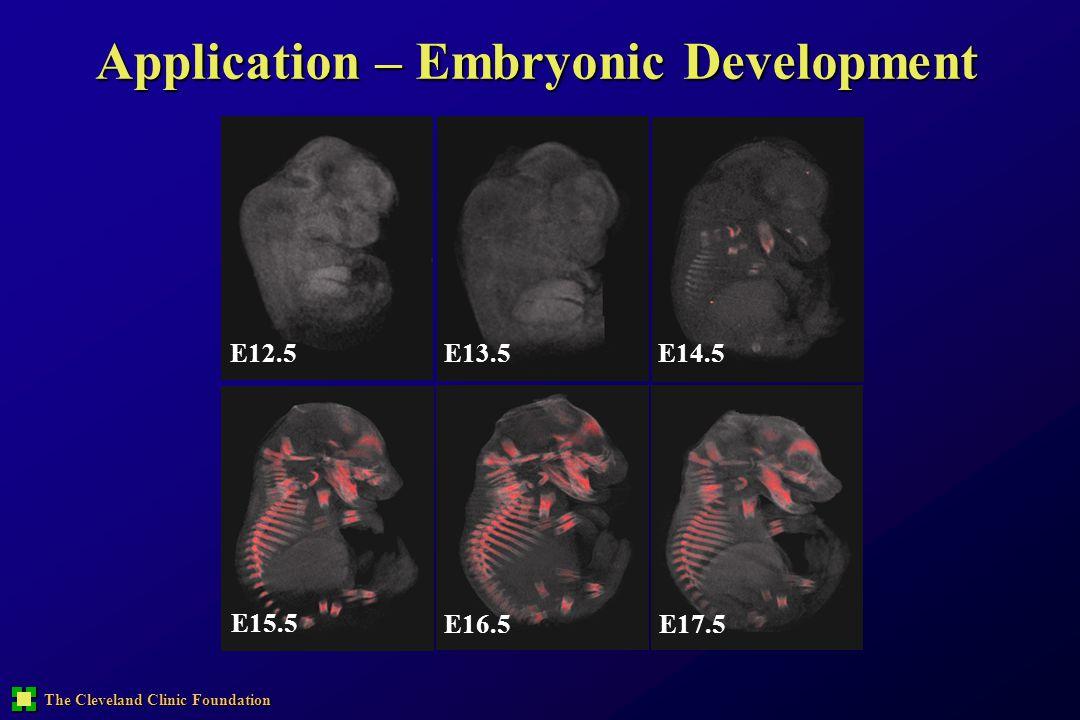 The Cleveland Clinic Foundation E12.5E13.5E14.5 E15.5 E16.5E17.5 Application – Embryonic Development