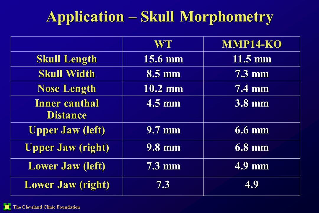 The Cleveland Clinic Foundation Application – Skull Morphometry WTMMP14-KO Skull Length 15.6 mm 11.5 mm Skull Width 8.5 mm 7.3 mm Nose Length 10.2 mm