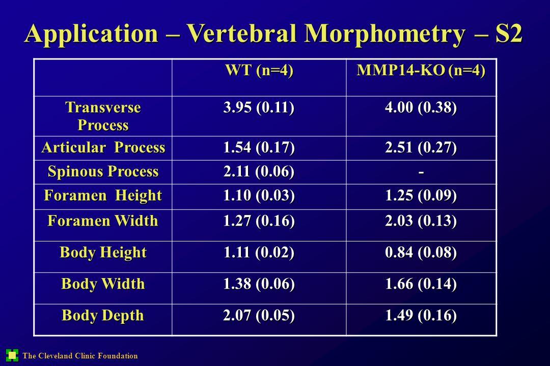 The Cleveland Clinic Foundation Application – Vertebral Morphometry – S2 WT (n=4) MMP14-KO (n=4) Transverse Process 3.95 (0.11) 4.00 (0.38) Articular