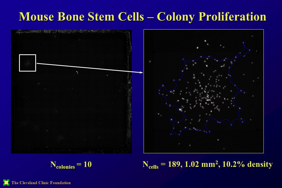 The Cleveland Clinic Foundation Mouse Bone Stem Cells – Colony Proliferation N cells = 189, 1.02 mm 2, 10.2% density N colonies = 10