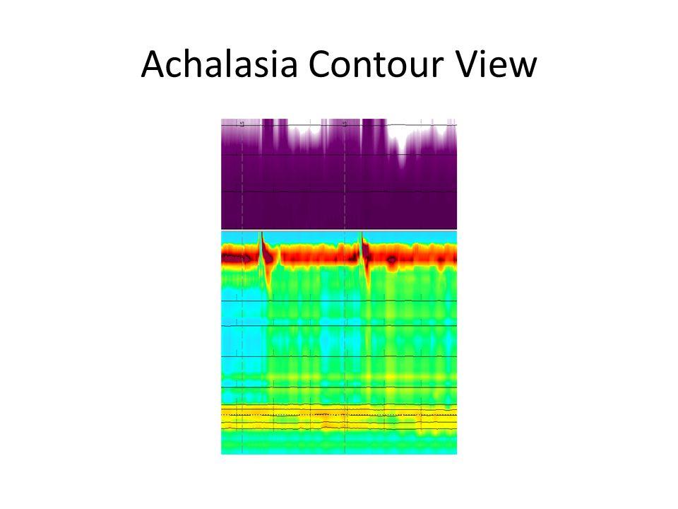 Achalasia Contour View