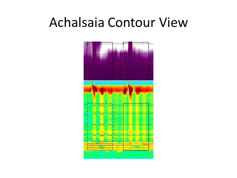 Achalsaia Contour View