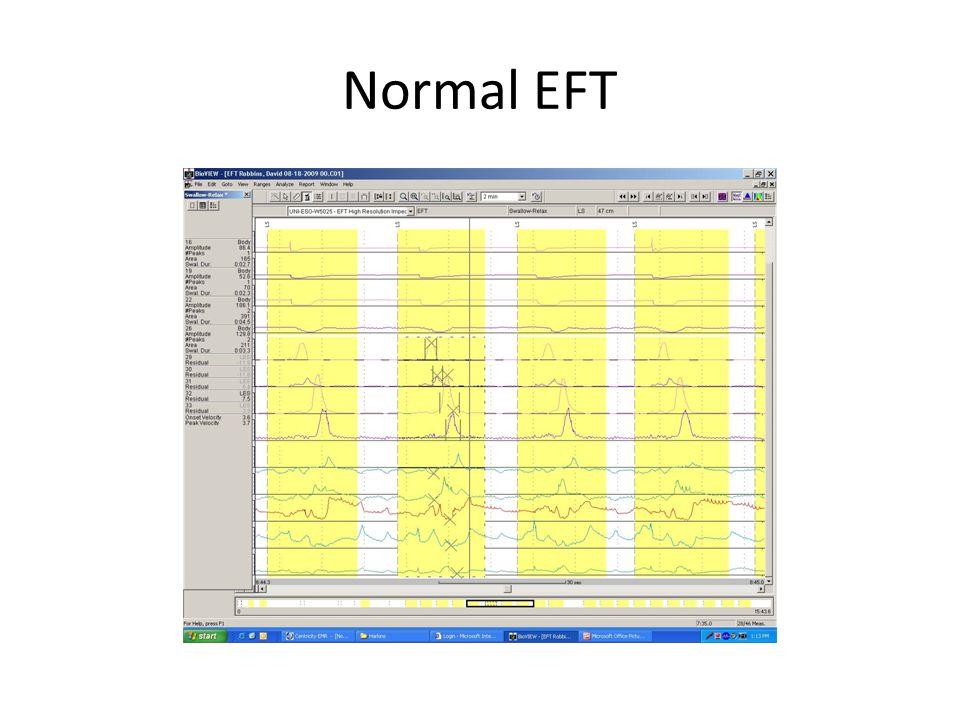 Normal EFT