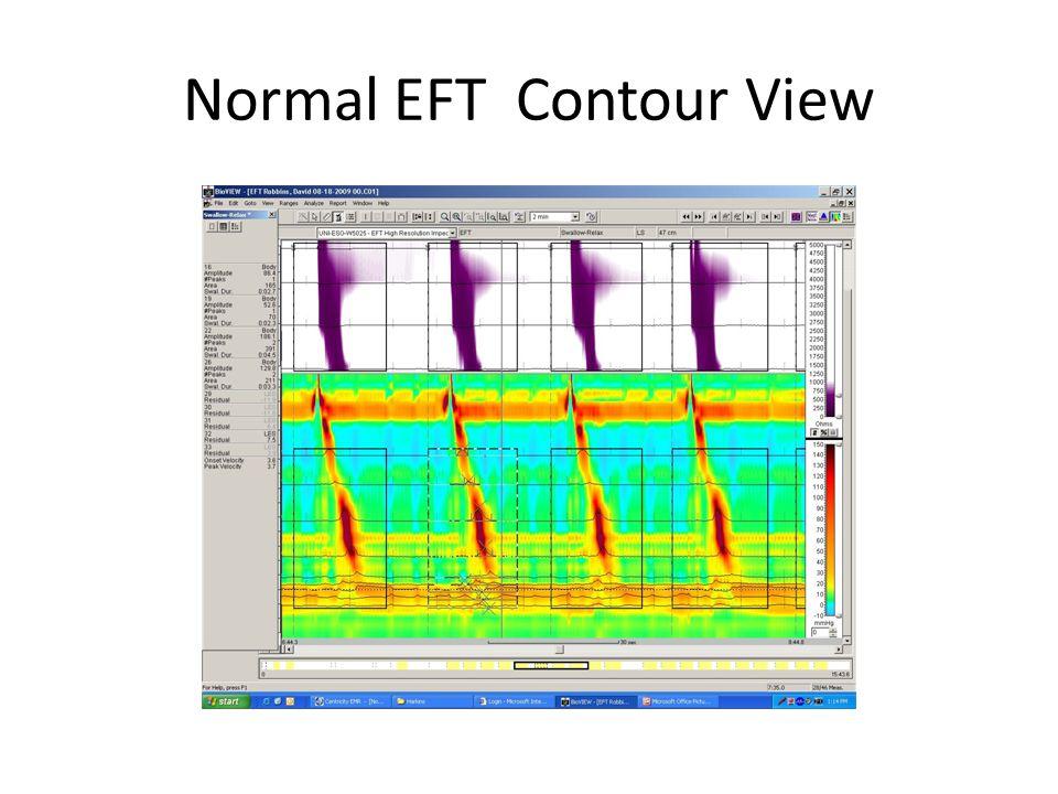Normal EFT Contour View