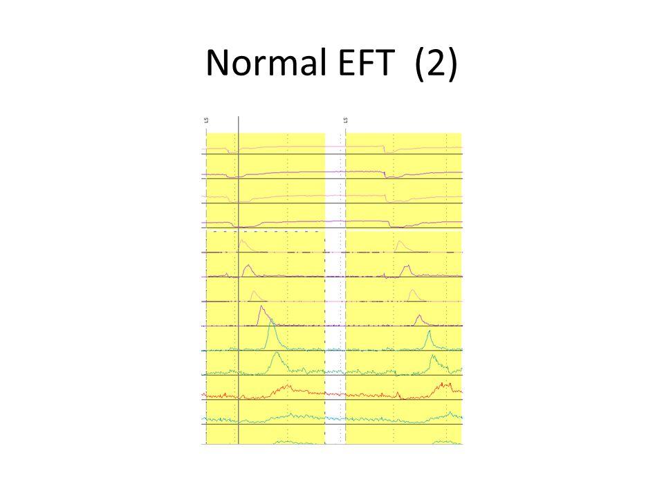 Normal EFT (2)