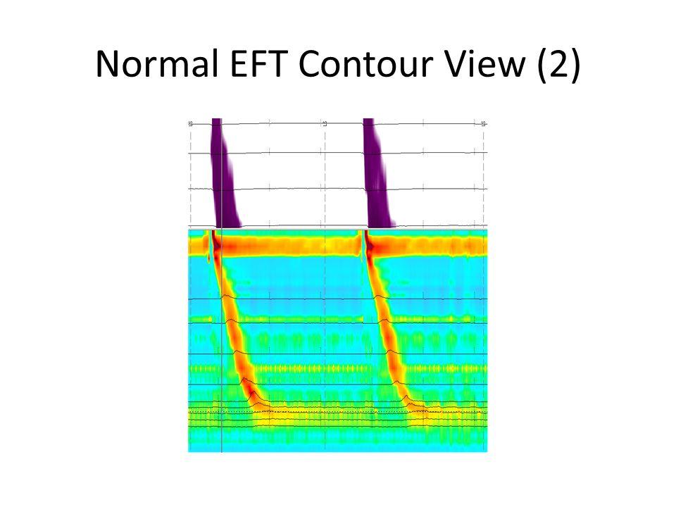 Normal EFT Contour View (2)