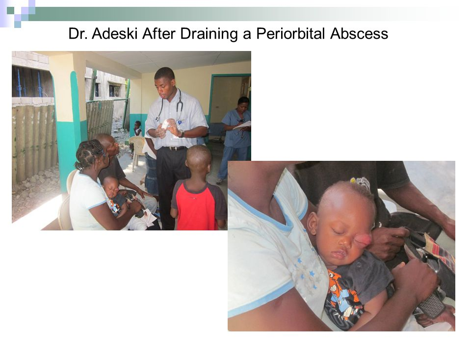 Dr. Adeski After Draining a Periorbital Abscess