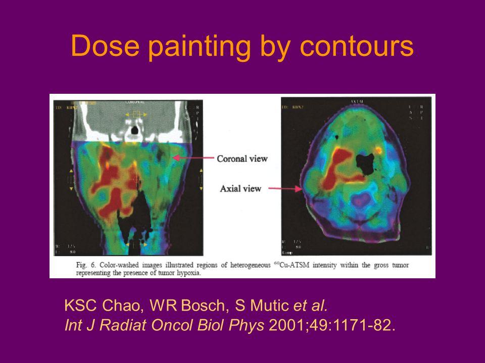 KSC Chao, WR Bosch, S Mutic et al. Int J Radiat Oncol Biol Phys 2001;49:1171-82.
