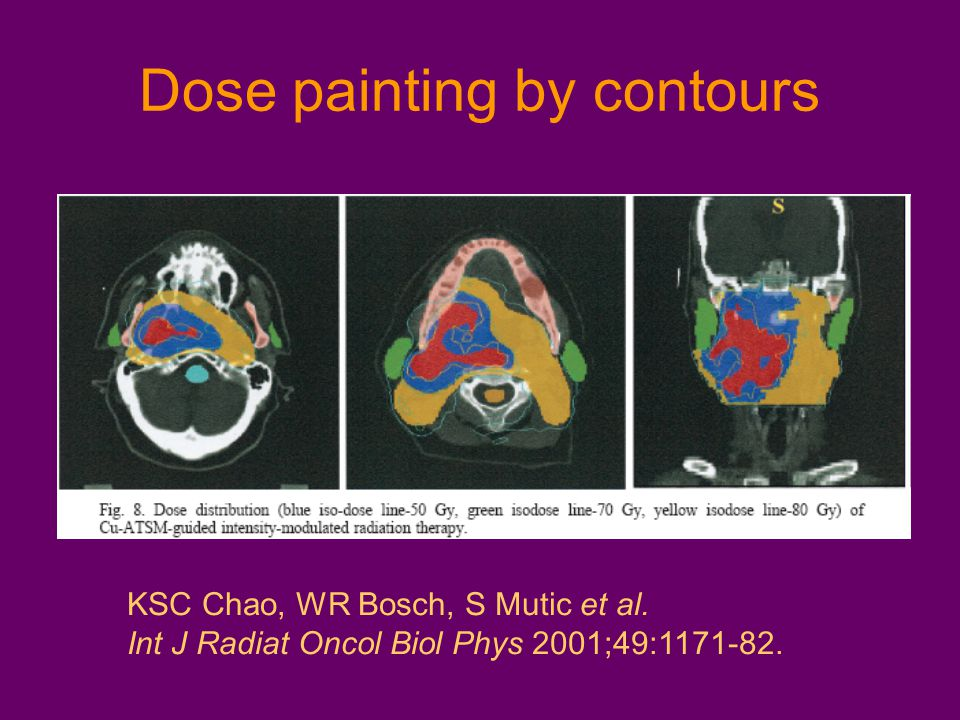 Dose painting by contours KSC Chao, WR Bosch, S Mutic et al. Int J Radiat Oncol Biol Phys 2001;49:1171-82.