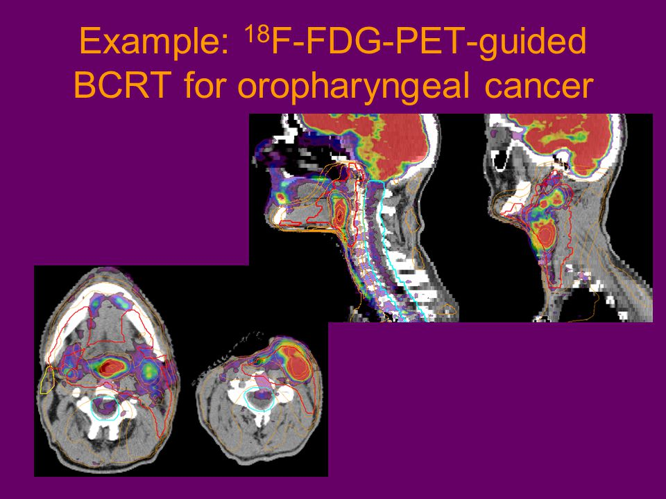 Example: 18 F-FDG-PET-guided BCRT for oropharyngeal cancer