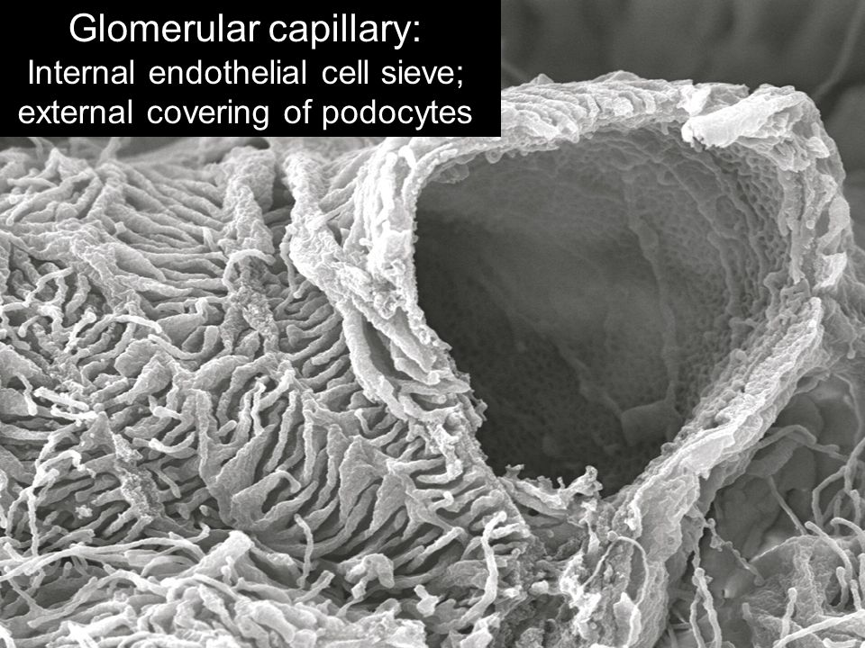 Glomerular capillary: Internal endothelial cell sieve; external covering of podocytes